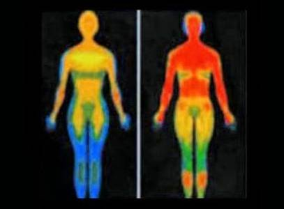 Soul Leaving the Body at the Moment of Death and Other Claims of Kirlian Photography