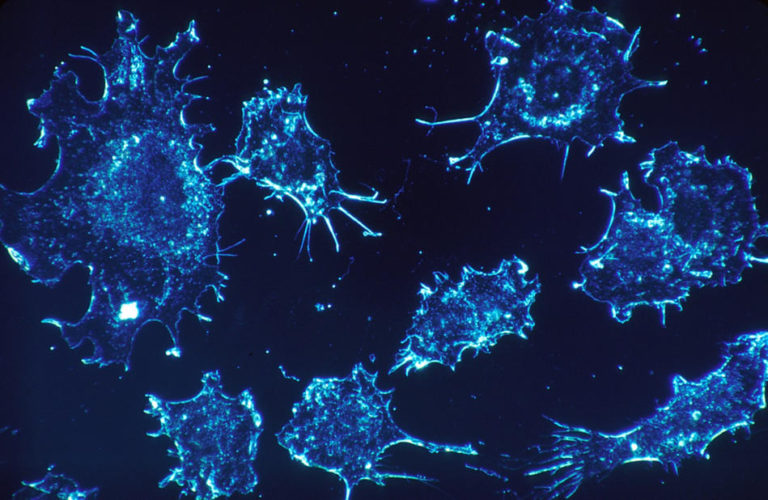 Scientists Found a Way to Reduce Side Effects in Modern Cancer Therapy