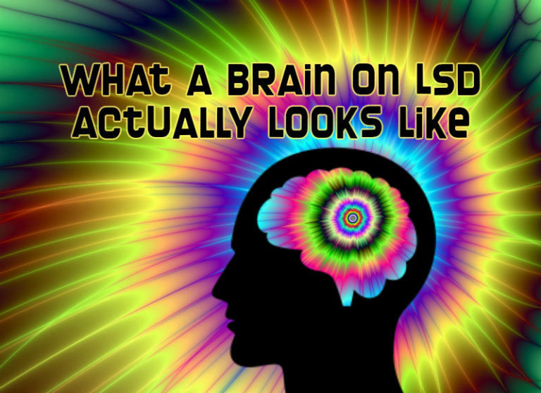 New Study Reveals What a Brain on LSD Actually Looks Like and This Is Eye-Opening