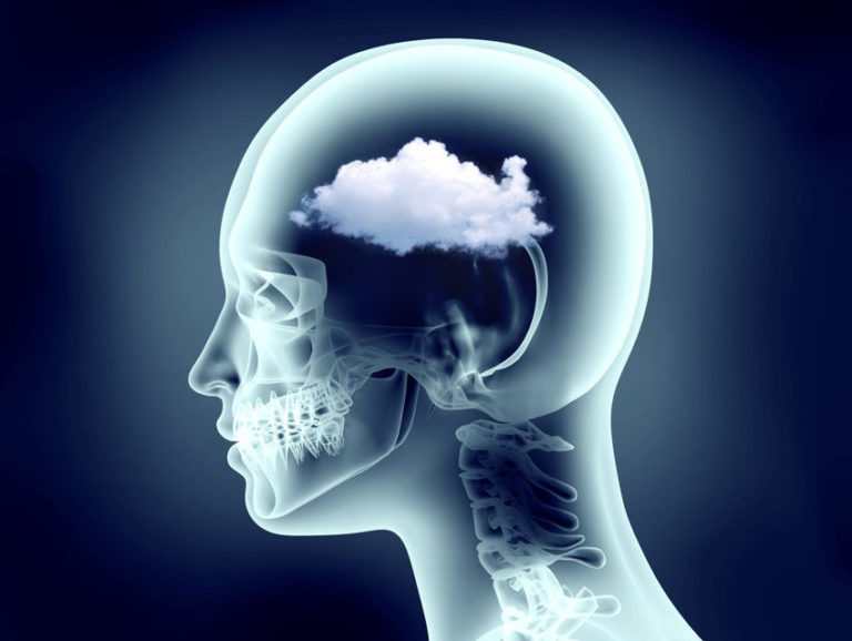 What Is Brain Fog and How to Get Rid of It Naturally
