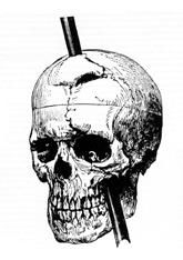 Phineas gage skull