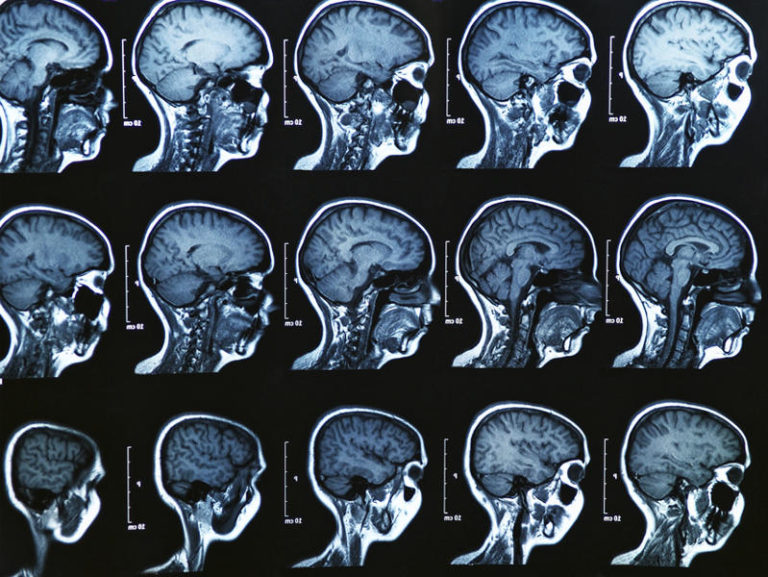 How a Psychopath's Brain Is Different from a Normal One and What It Means